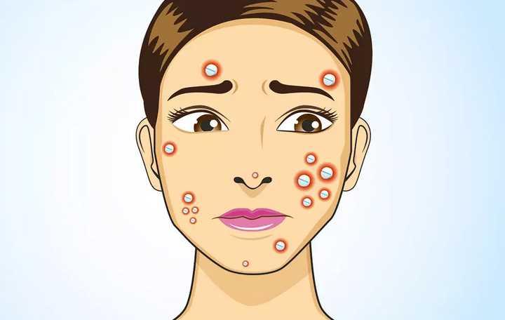 Long term treatments for pimples